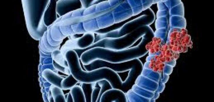 Appendix Cancer Treatment