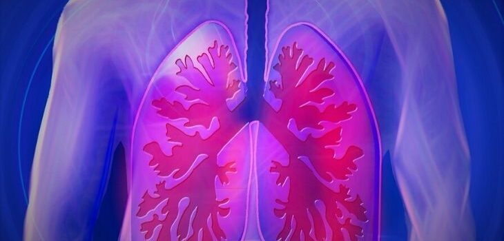 Small Cell Lung Cancer Treatment