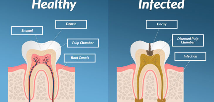 Symptoms of Tooth Infection Spreading to Body