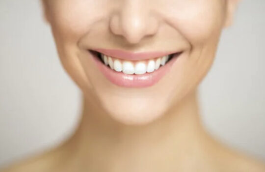 Benefits Of Teeth Whitening: Make Your Smile Beautiful