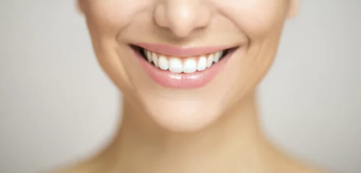 Benefits Of Teeth Whitening: Make Your Smile Beautiful