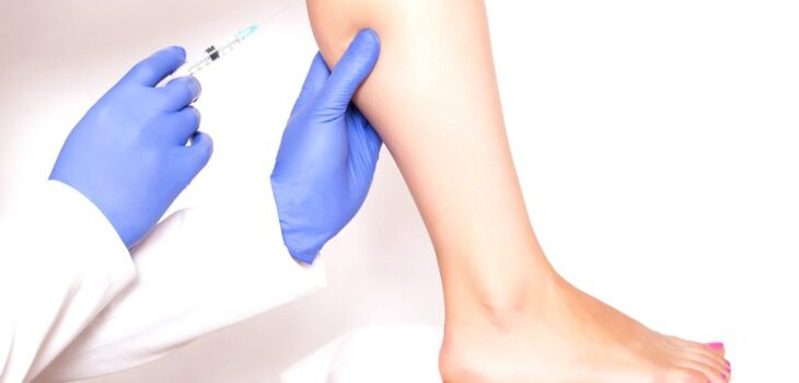 What You Need to Know About Calf Reduction Surgery