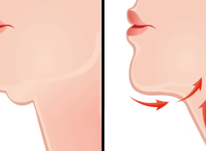 Double Chin Reduction for a Newly Confident Profile