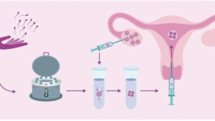 The Benefits of Delayed Frozen Embryo Transfer