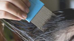 Types, Causes, Diagnosis and Treatment of Head Lice