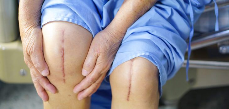 Why Should You Consider Knee Replacement Surgery?